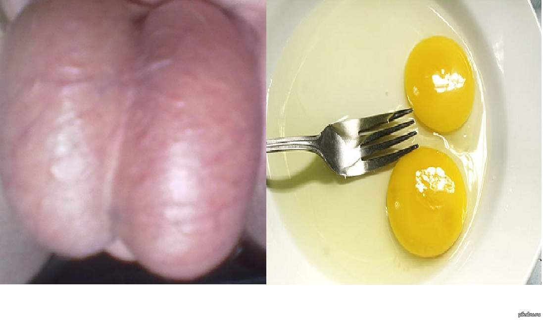 яйца человека фото